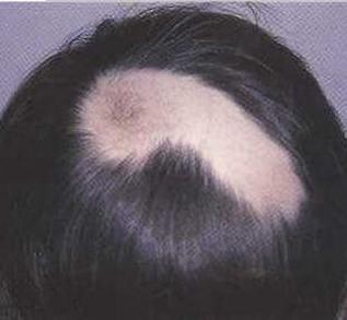 斑秃确诊的五项检查