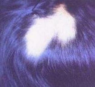 斑秃患者洗发特别注意