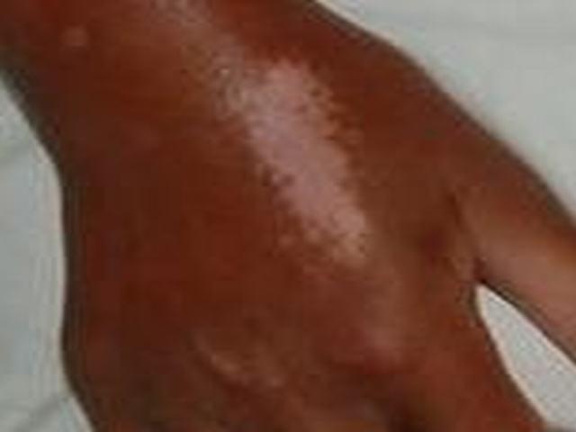硬皮病病对患者皮肤伤害引荐