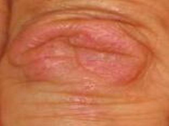 系统性硬皮病对性功能会形成哪些作用