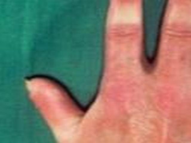 硬斑病的辅助检查有哪些