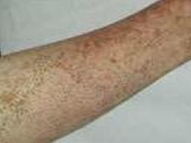 硬斑病的中医临床分型