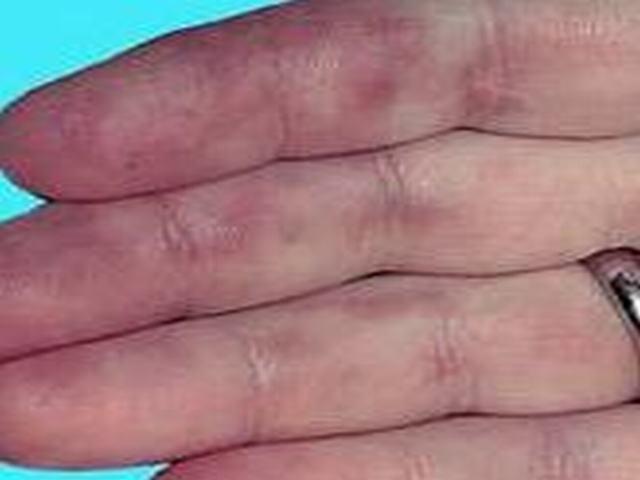 硬斑病患者自我保健护理的措施