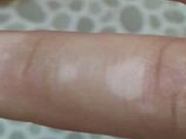 硬斑病皮肤是否会变硬呢