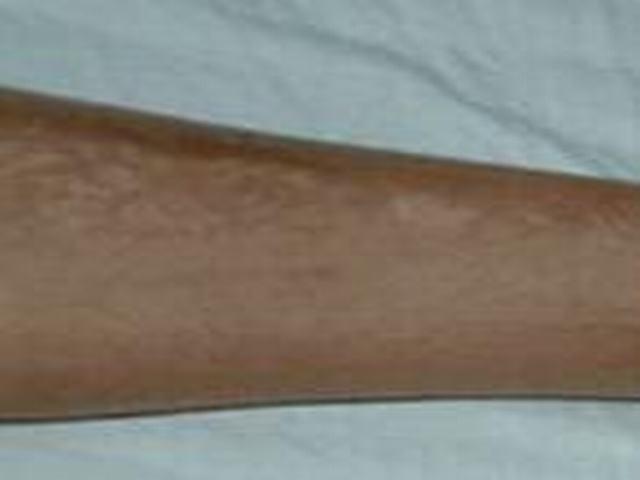 得了硬斑病怎样治疗呢