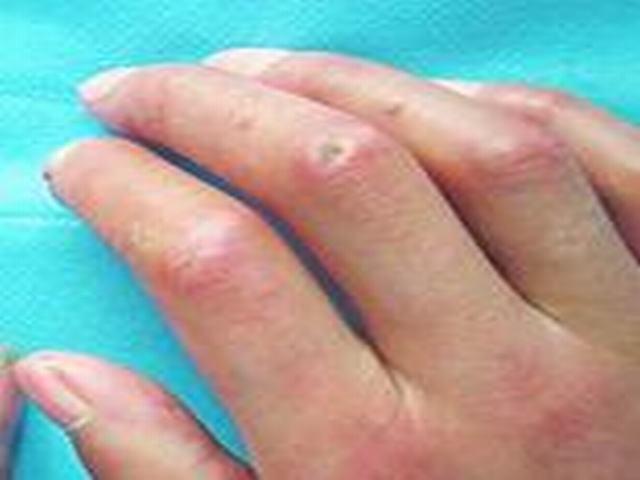局限性硬斑病它会传染呢