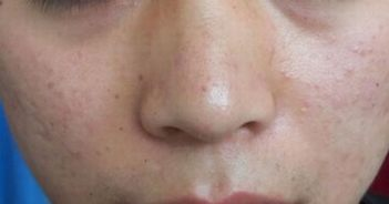 扁平疣的早期的症状有哪些