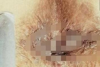 传染性软疣的护理措施引荐