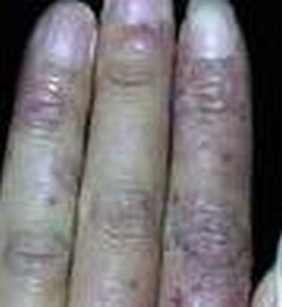冻疮有哪些发病原因