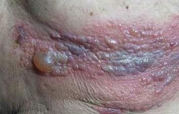带状疱疹的后遗症常识