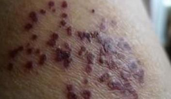 病毒性带状疱疹的伤害有什么
