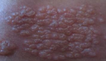 带状疱疹的要怎样自己辨别