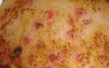 带状疱疹都有啥危害