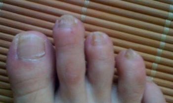 灰指甲如何治疗呢
