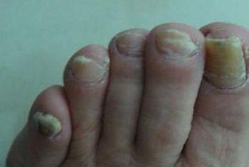 灰指甲能不能遗传给另一代呢