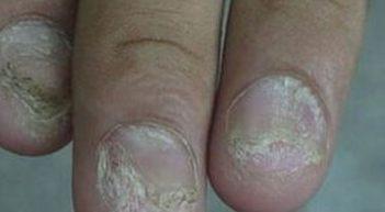 灰指甲会发现哪些常常看见的并发症