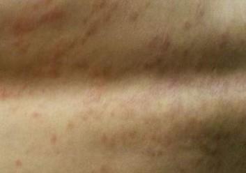 我的皮肤总是瘙痒什么情况