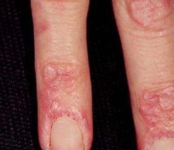 无肌病性皮肌炎应怎样进行预防