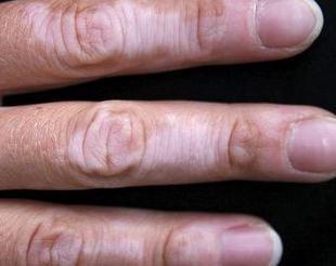 应怎样发现皮肌炎症状吗