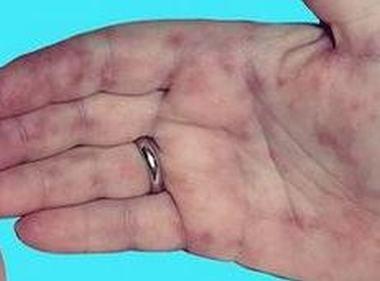 皮肌炎怎么诊疗效果很好