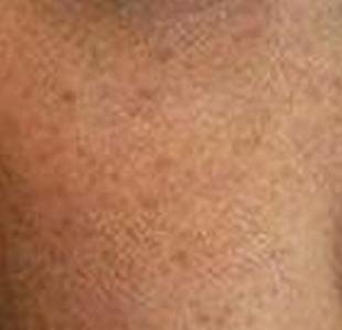 黄褐斑竟是内分泌失调惹的祸