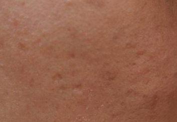 痤疮的致病因素是什么