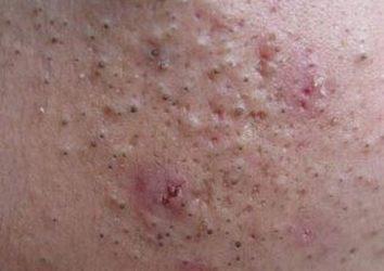 痤疮给患者形成的损伤有什么