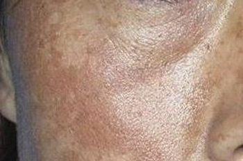 黄褐斑对身体有啥危害