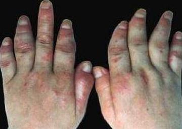 多发性皮肌炎治疗的方法