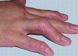 中医治疗皮肌炎理念是啥