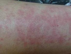 皮肤过敏红肿怎样做