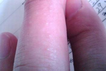 面部皮肤过敏平时该有哪些要留心
