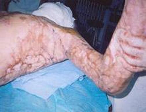 疤痕有什么伤害