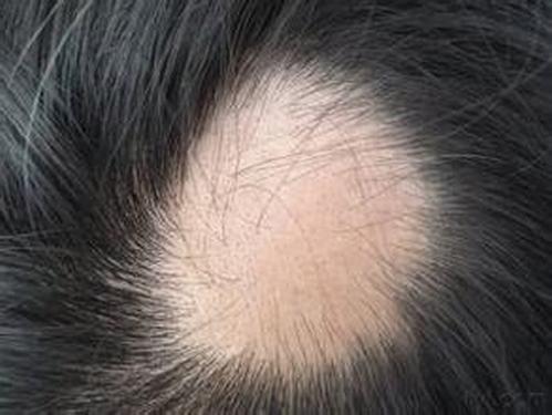 为什么男性患上斑秃难以治愈