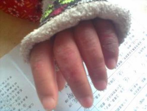 小儿冬季更易发生冻疮损害