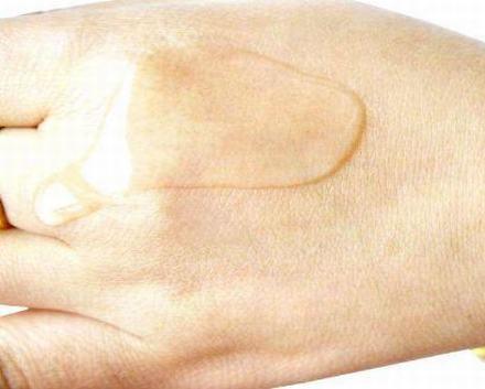 4大因素影响疤痕修复多少钱