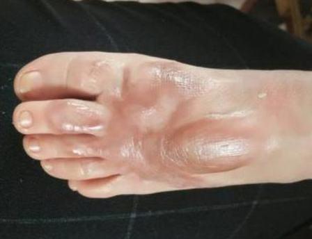 盘点疤痕修复的措施都有什么呢