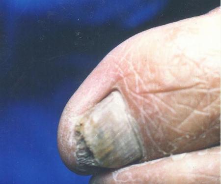 灰指甲的发病原因有哪些
