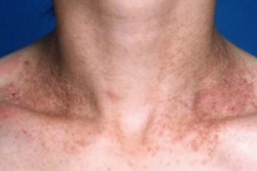 患了毛囊角化症的症状是什么样子呢