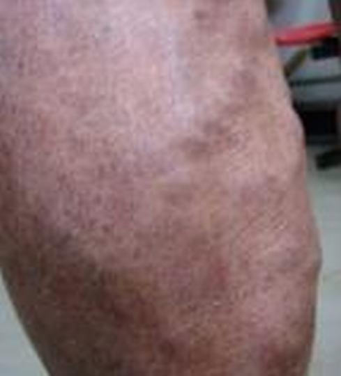 患有淤滞性皮炎如何护理